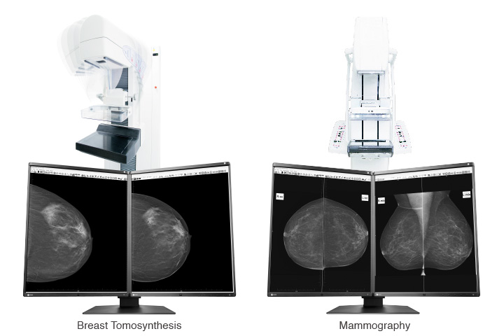 Optimum Breast Screening Monitor